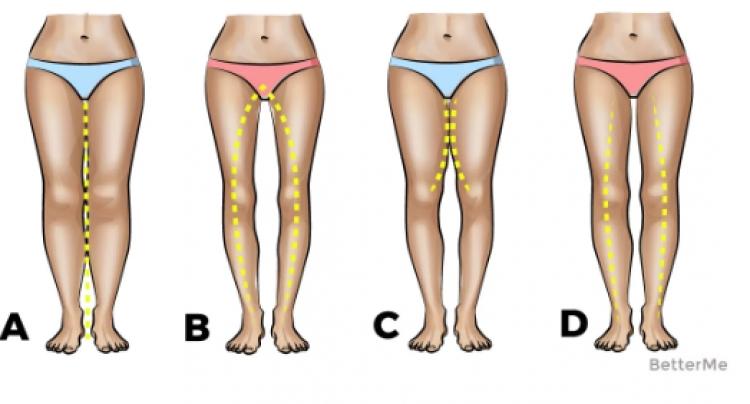 Forma e këmbëve që keni, tregon se si jeni në… (FOTO)
