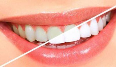Dëshironi të keni dhëmbë të bardhë dhe të shndritshëm? Ja kush janë 9 mënyrat natyrale për të pasur dhëmbë të tilla…