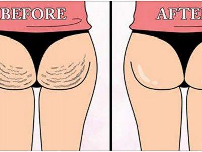 Ky është trajtimi që eliminon celulitin 100% dhe nuk e lejon të përhapet!