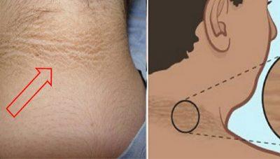 Dy trajtime natyrale që zbardhin njollat e qafës dhe hidratojnë lëkurën e saj