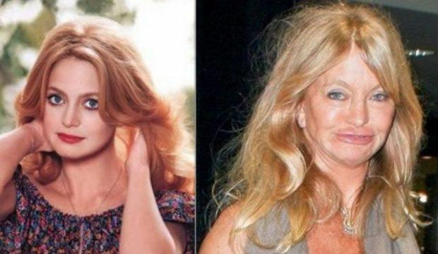 """""""Dora e bisturisë plastike i ka transformuar""""/ Këto janë aktorët që duket sikur kanë vënë fytyrë të re nga KIRURGJIA"""