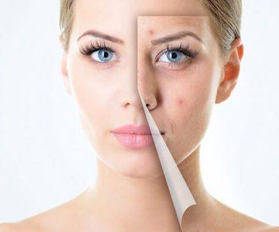 Ju tregojmë gjithçka për aknet në fytyrë gjatë periodave: Si, përse dhe çfarë duhet të dimë?