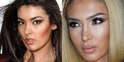 Buzë dhe hundë të bëra, VIP-at shqiptarë që nuk njihen më nga operacionet (FOTO LAJM)