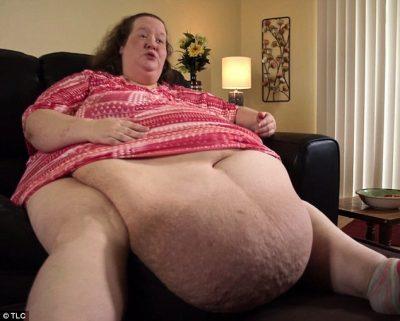 45-vjeçarja që peshon 272 kg: Doja të haja dhe hëngra (FOTO)