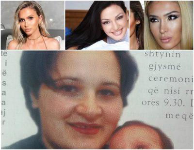 Personazhet shqiptare që kanë zvogëluar hundën dhe shumë mirë kanë bërë!