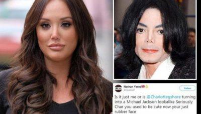 """FOTO/ E """"gozhdojnë"""" me kritika për ngjashmërinë me Michael Jackson, vajza jep përgjigjen interesante"""