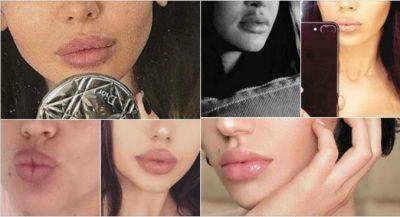 Buzët më të mëdha në showbiz-in shqiptar. Mos ndoshta e keni tepruar pak me masën?