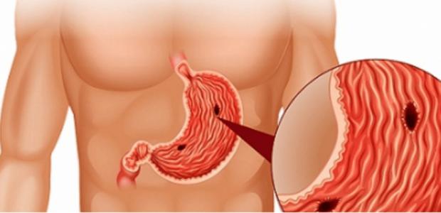 Ja çfarë duhet të dini për kancerin në stomak, dhe si ta parandaloni
