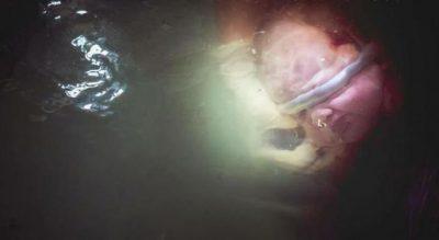 Fotografitë që tregojnë misteret e pabesueshme të kordonit të kërthizës