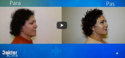 Surpriza e 64-vjeçares për 3 fëmijët e saj: Freskinë e shpirtit doja ta pasqyroja dhe… (VIDEO)