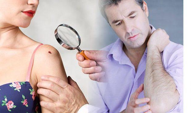 Simptomat e kancerit të lëkurës: 4 çrregullime që duhet t'ju çojnë tek doktori