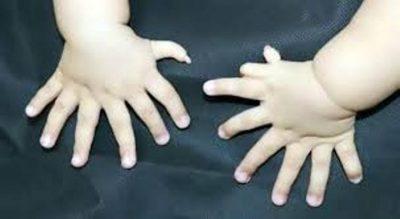 A janë shumë 7 gishta në dorë? Wow! 31 gishta tek gjymtyrët e një foshnje (FOTO)