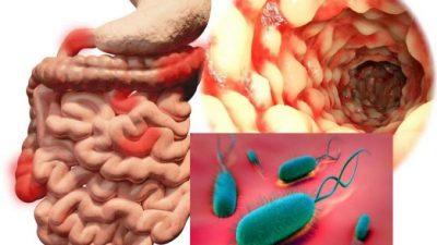 Si ta sulmoni bakterin që ju shkakton fryrje dhe urth. Përbërësit i gjeni në shtëpi