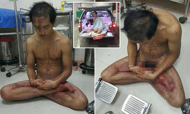 Shikon video porno, 30-vjeçari pret me thikë organet e tij gjenitale (FOTO)