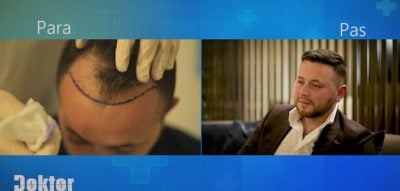 DOKTORI PLASTIK/ Ndryshimi drastik i Artemisit, pas transplantit të flokëve: Kam përjetuar dhimbje më të… (FOTO)