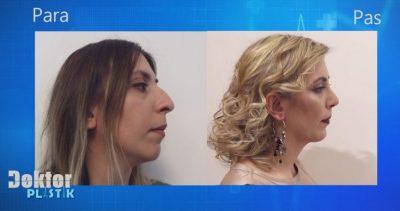 Mësuesja shqiptare realizon ëndrrën e saj! Shikoni ndryshimin drastik pas operacionit (VIDEO)