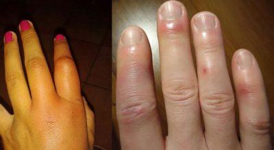 Ju janë fryrë gishtat aq shumë sa nuk ju bën as unaza e martesës, çfarë fshihet pas kësaj gjendjeje