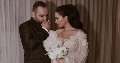 Detaji që askush nuk e vuri re! Jona Spahiu paska bërë NDRYSHIMIN e madh pas martesës (FOTO)
