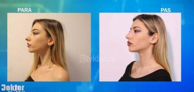 Njihuni me Jonën vajzën 22 vjeçare që ju realizua ëndrra për tu bërë modele nga… (VIDEO)
