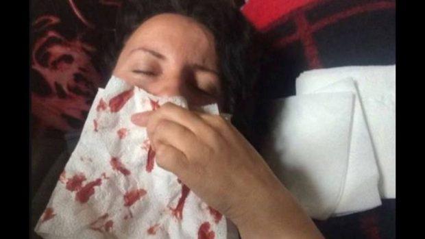 Linda Morina e mbuluar nga gjaku, çfarë i ka ndodhur këngëtares? (FOTO)