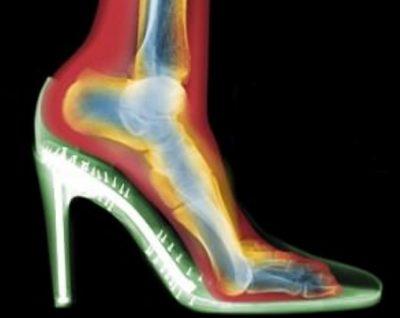Sekreti i jetëgjatësisë qëndron tek këmbët! Flasin mjekët: Një posturë e mirë nis…