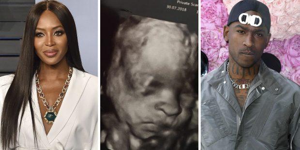 U GËZUAM KOT/ Modelja nuk është shtatzënë poston foton me bikini (FOTO)