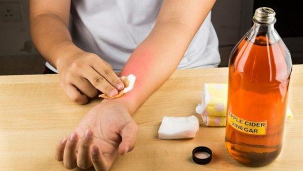 JA SI DO TË SHPËTONI NGA MUSHKONJAT/ Aromat që duhet të keni në shtëpi janë këto