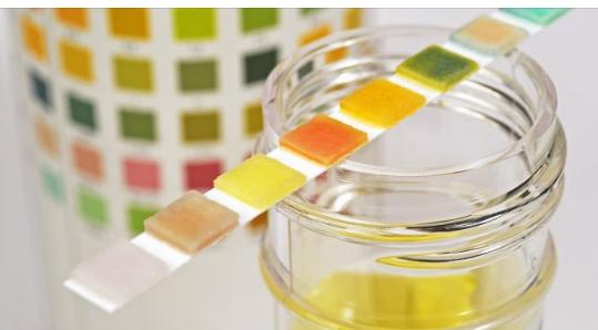 Kini kujdes/ Ngjyra e urinës ju paralajmëron diçka të rrezikshme