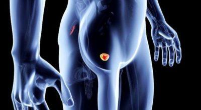 Tumori i prostatës, 7 sinjale që duhet t'iu alarmojnë