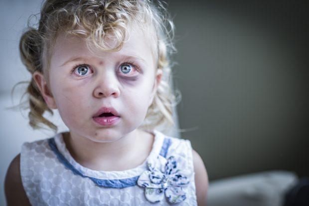 Babai kishte dy gra/ 9-vjeçarja përdhunohet e vritet brutalisht nga njerka dhe vëllai
