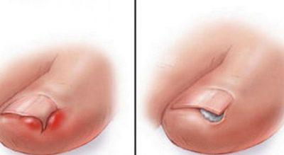 Si duhet të veproni kur thonjtë e këmbës rriten brenda lëkurës