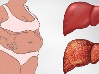 Toksinat ju bëjnë të ndiheni të fryrë dhe të shëndoshë/ Ja si ti eliminoni nga trupi juaj