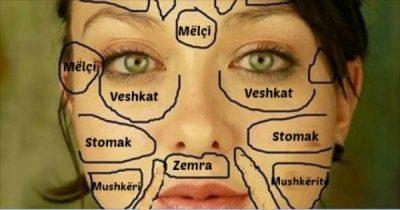 Probleme me puçra në fytyrë? Ja nga cilat sëmundje mund të vuani