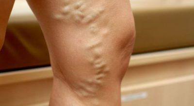 Vuani nga zgjerimi i venave në këmbë? Ja si ti shëroni