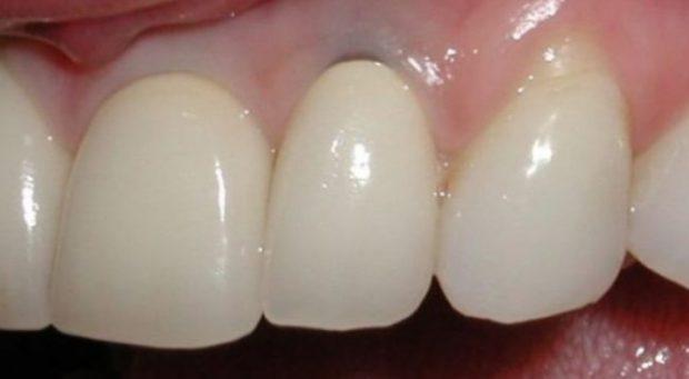 LAMTUMIRË IMPIANTEVE DENTARE! Tani dhëmbët mund të ridalin sërish vetë