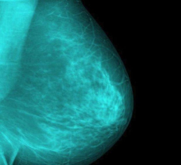 KINI KUJDES! Ja 6 simptoma të kancerit të gjirit që nuk kanë lidhje me gjëndrën