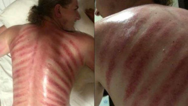 """""""SURPRIZA E PAKËNDSHME""""/ Hyri për të bërë masazh, por doli sikur të kishte qenë në dhomën e torturës"""