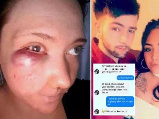 DHUNË BRUTALE/ Vajza 23-vjeçare tregon shenjat e rrahjes nga i dashuri pedofil