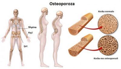 """""""OSTEOPOROZA""""/ Ja si mund të parandalohet dhe trajtohet kjo sëmundje e kockave"""