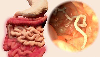 Shihni 4 super ushqimet që eleminojnë parazitët e zorrëve tek fëmijët e vegjël