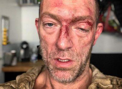 VINSENT CASSEL SHOKON FANSAT/ Fotografohet me fytyrë të gjakosur