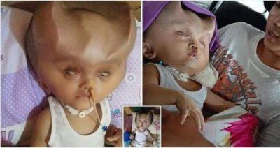 KURRË NUK KENI PARË FËMIJË TË TILLË/ Flet e ëma: Njerëzit më thonë se është si djall (FOTO)