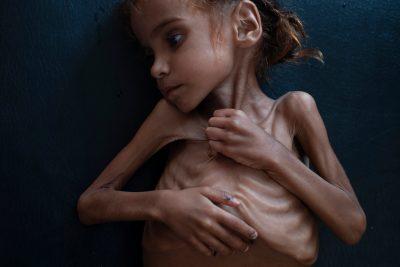 U BË SIMBOLI I URISË NË JEMEN/ Ndahet nga jeta 7-vjeçarja