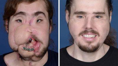 """""""MUND TË BUZËQESH SËRISH""""/ Ndryshimi drastik i të riut pas transplantit të fytyrës"""