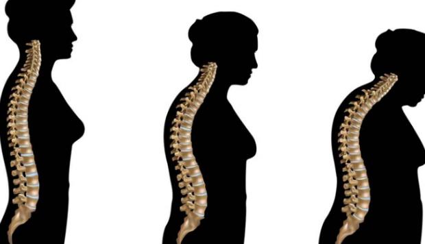 """""""OSTEOPOROZA""""/ Ja pse gratë duhet të informohen rreth saj pas kalimit në menopauzë"""
