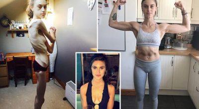 """""""E SHËNDOSHË DHE E SHËMTUAR""""/ Historia e dhimbshme e 22 vjeçarjes që fitoi kundër anoreksisë"""