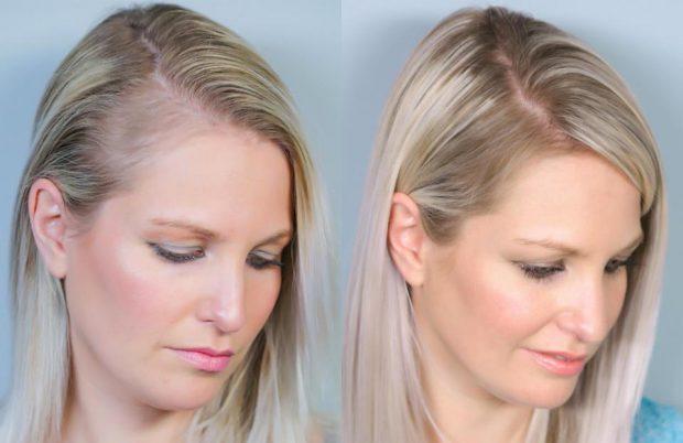 """""""Kura e mrekullisë""""/ Kjo grua gjen zgjidhjen ideale për rënien e flokëve pas shtatzënisë"""