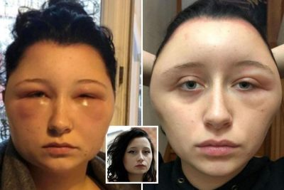 """IMAZHE SHOKUESE/ 19-vjeçarja kthehet në """"llambë"""" prej bojës së flokëve (FOTO)"""