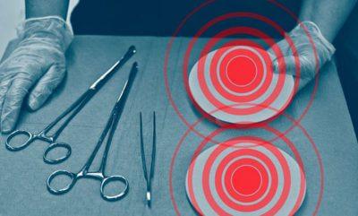 IMPLANTI GJOKSIT/ Miliona gra e përdorin pa ditur lidhjen me tumorin e rrallë
