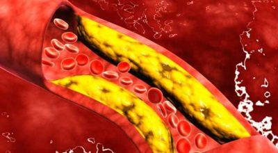 VETËM ME NJË FRUT/ Kështu mund të pastroni arteriet tuaja